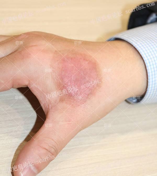陕西曹先生左手4年增生疤痕治疗案例