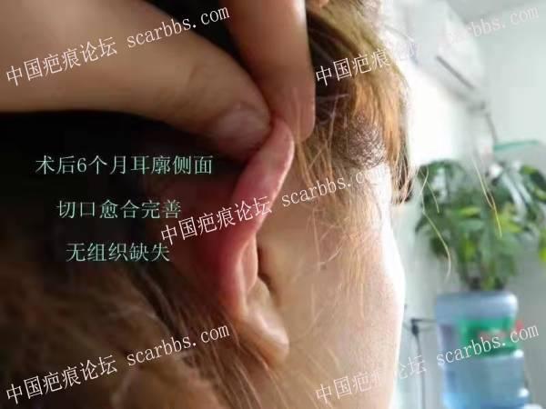北京南加-开展爱回归祛疤免费、减免活动 招募