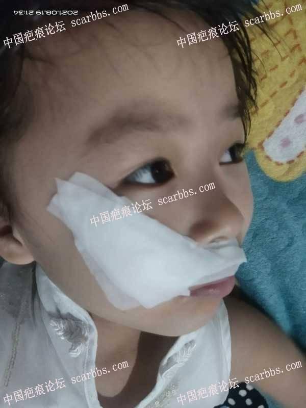 更新一下小美手术三年多,现在脸上恢复的基本看不出来了,