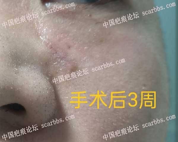 水痘疤痕手术后一月了,分享下恢复情况
