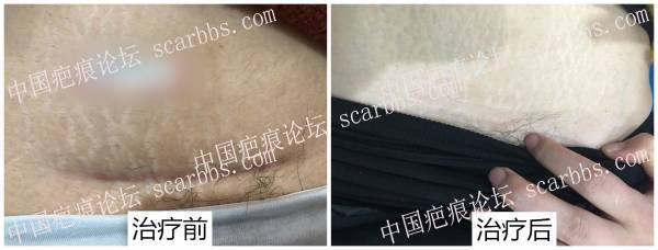 剖腹产疤痕光电治疗反馈