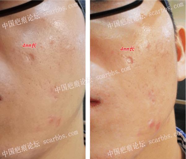 祛痣留下的凹陷性疤痕,请教大家这种如何修复。