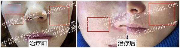 脸部凹陷疤痕治疗反馈