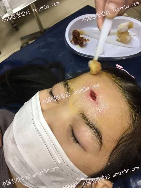 孩子额头受伤,记录恢复过程