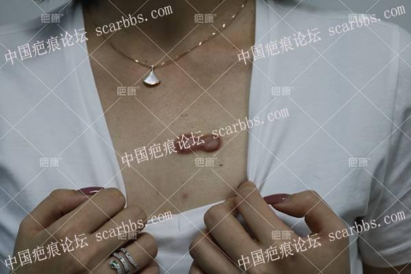 北京高女士前胸5年疤痕疙瘩治疗案例