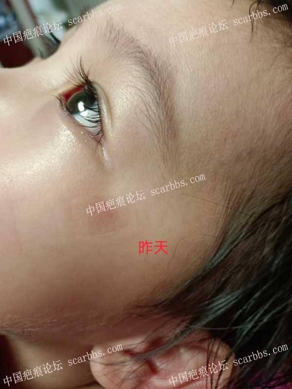 孩子脸颊擦伤,如何护理?