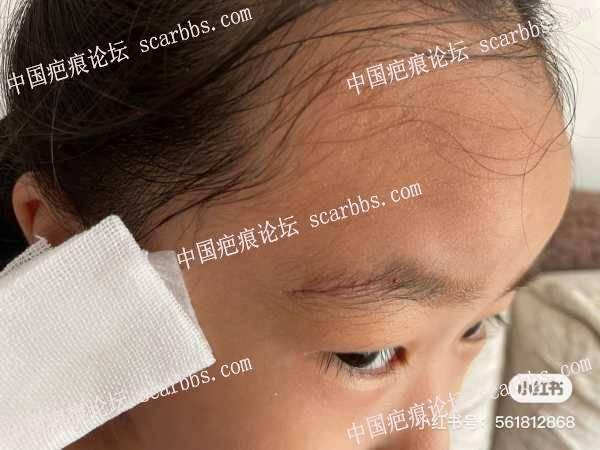 孩子在幼儿园摔伤,求拆线后的护理知识。