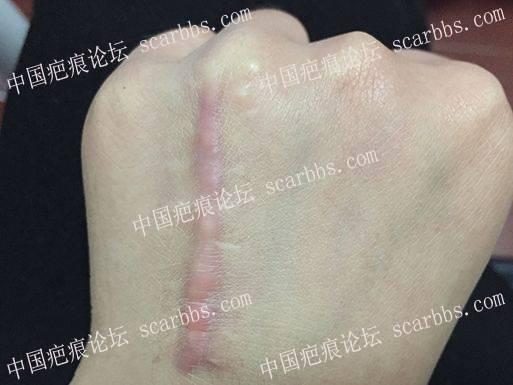 手术疤痕增生.jpg