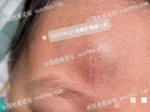 儿童额头疤痕如何护理呢,现在很茫然,请大家指教