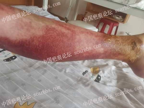 全身70%烧伤疤痕增生,如何修复?