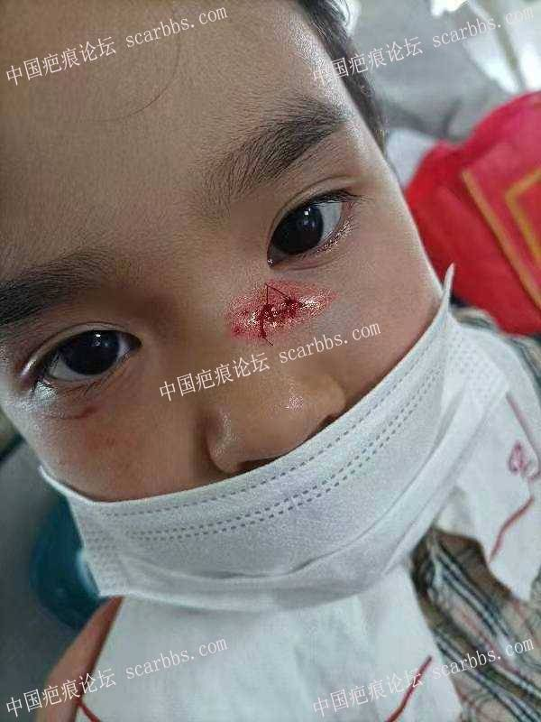 孩子磕伤缝针,求助去疤过程