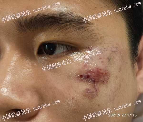 9月27日左眼角面部疤痕修复记录(杨东运)