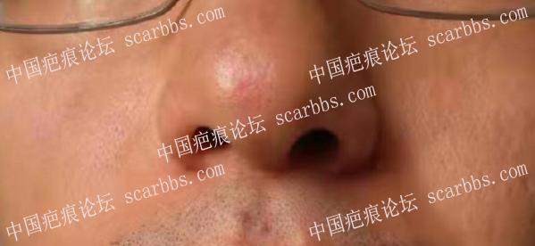 鼻部痘坑治疗