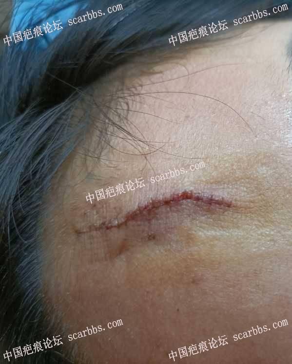 额头几十年凹疤,手术切缝治疗了