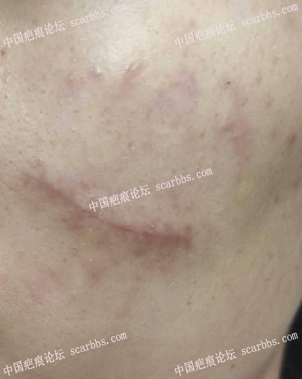 2021.8.19陈立彬凹陷疤痕切缝