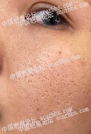 痘坑皮肤能不能去做植皮手术