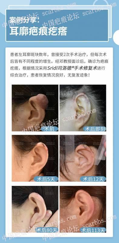 打耳洞的疤痕疙瘩切除了