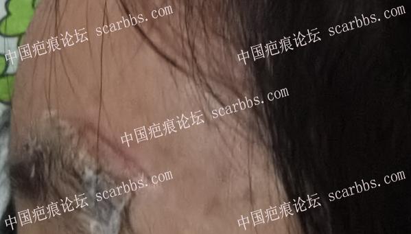 儿童额头磕伤,胶粘没有缝针,请教各位前辈怎么护理?
