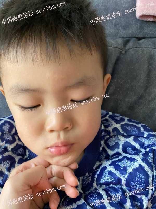 孩子额头缝针一年多,继续做点阵激光还能改善吗?