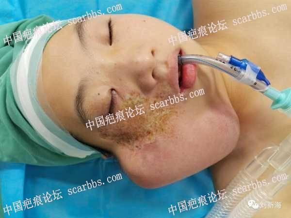 面部大面积疤痕精细扩张术即刻效果