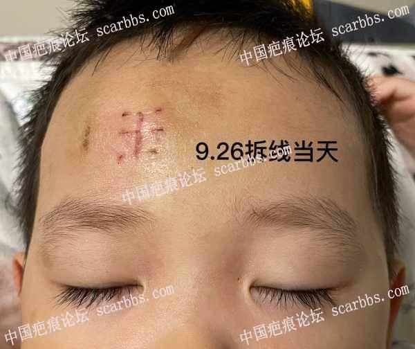 宝宝额头磕伤,如何护理?