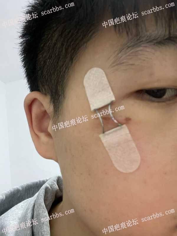 脸上疤痕终于去杨教授那里做了切缝