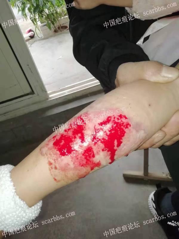 2021年李高令接治又一个受伤孩子(青岛)