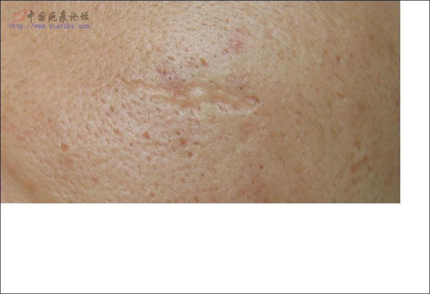 [贴图]在九院的疤痕切除后再plasma去疤成功