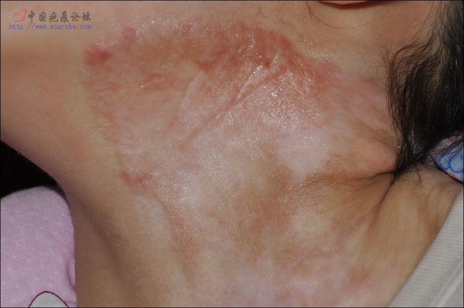 女儿烫伤三年恢复情况--坚持就能看到希望77-疤痕体质图片_疤痕疙瘩图片-中国疤痕论坛