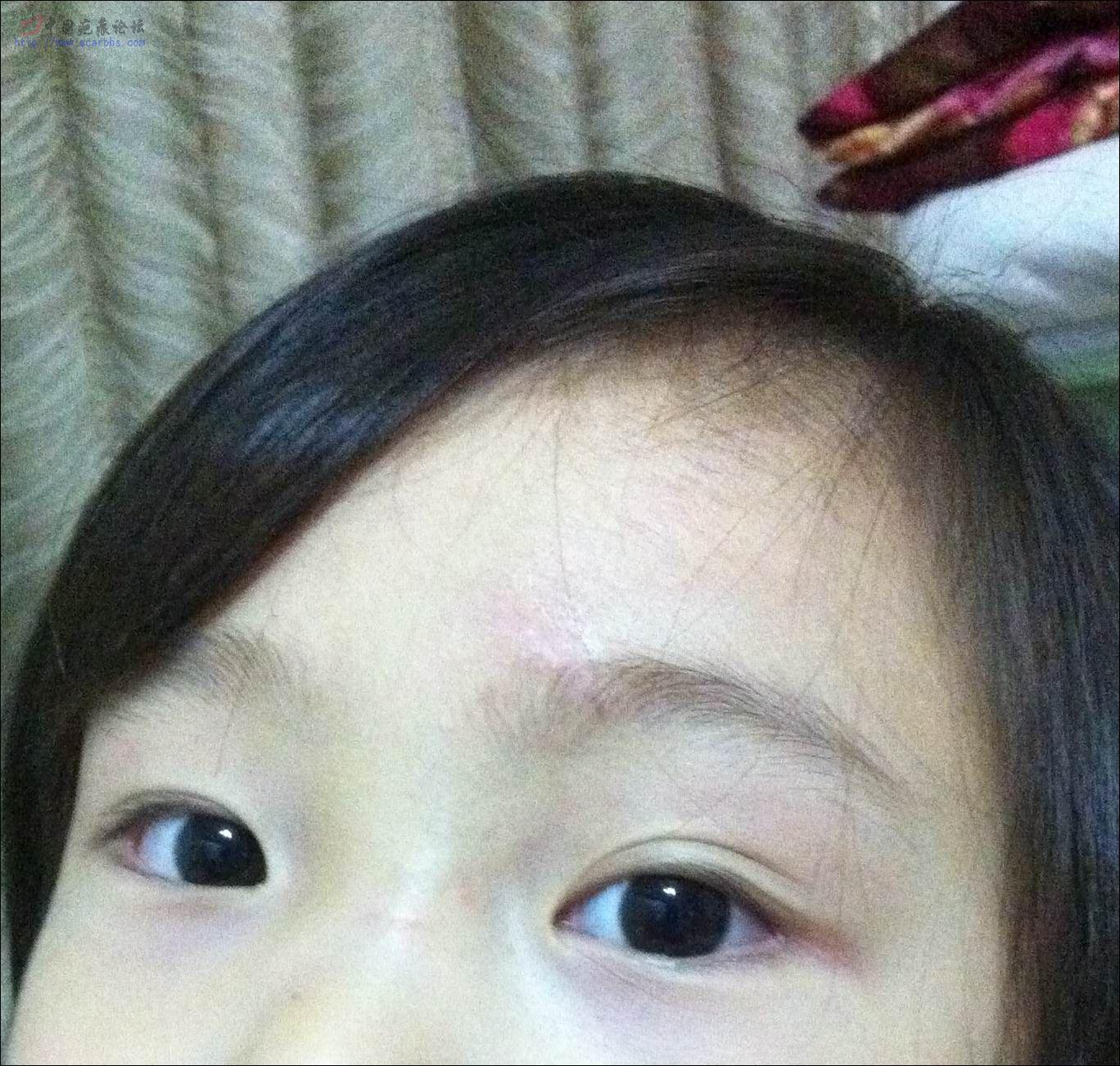 宝宝受伤了,额头缝六针,疤痕修复进行中......