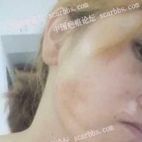 面部30多年的烧伤疤痕想修复