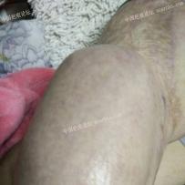 大腿皮肤扩张终于迎来二期了