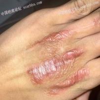 手背被夹伤,造成增生疤痕,疤友们还有救吗?