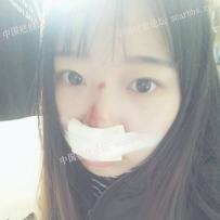 鼻子人中擦伤,已掉痂,还有红印