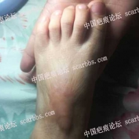 三岁宝宝脚面烫伤瘢痕增生