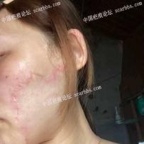 脸上疤痕手术七八个月了,为什么还红