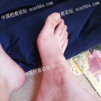 广州哪家医院可以治疗我的色素疤痕?