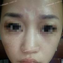 眉心23年的烧伤疤痕能去掉吗?