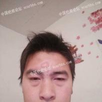 令人恶心的额头瘢痕疤痕,该怎么治疗?