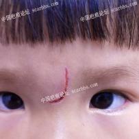 宝宝磕伤没有缝针该怎么护理?