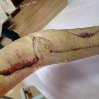 手臂上的疤痕做扩张器手术修复