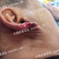 耳垂外伤缺损修复