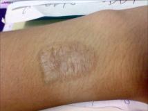 【烧伤疤痕】我在小诊所去纹身后留下的疤痕