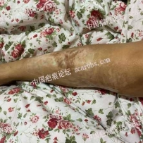 大面积腿部烧伤疤痕求救