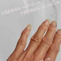 手背烧伤疤痕,怎么才能修复好?