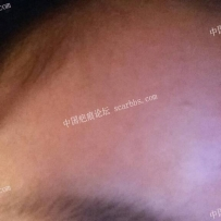 在武汉做了切除缝合手术。心里很没底请有经验的朋友们帮帮我