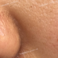 鼻子旁边的凹陷疤痕治疗之后,对比一下