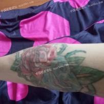 手肘上小时候烫伤了,纹身了还是觉得不太美观