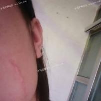 脸部疤痕一年半了,怎么治疗比较好?