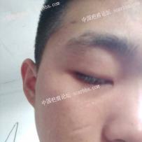 面部凹陷疤痕,请问山东哪个医生治疗的比较好?